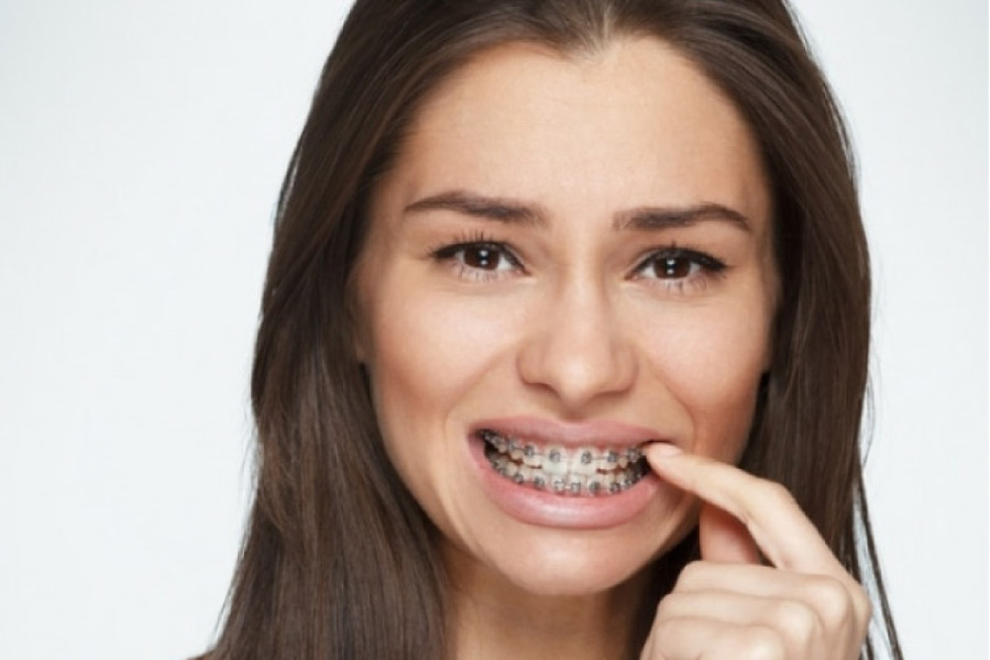 young woman picking at her braces on her teeth
